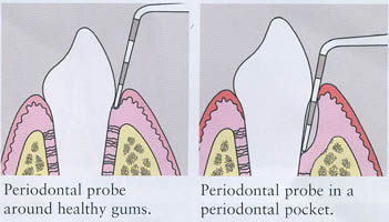 Periodontal Exam 01