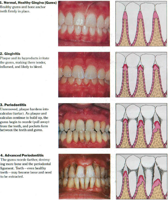 Periodontal Exam 02